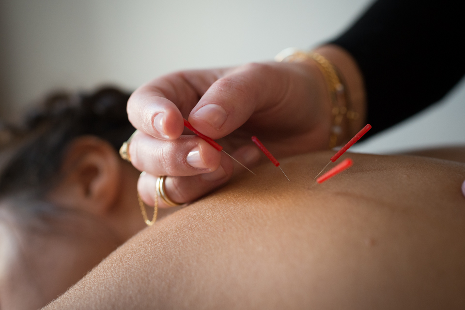This image has an empty alt attribute; its file name is Acupuncture-Atelier-191-of-265.jpg